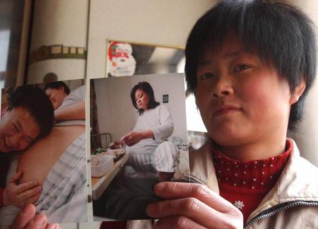 图文:王翠英展示自己怀着五胞胎时的照片