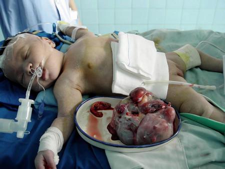 """双胞胎弟弟藏在哥哥肚中 出生仅11天的男婴做""""剖腹产"""""""