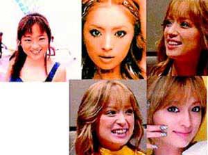 组图:日本明星整容前后大曝光 美与丑的瞬间