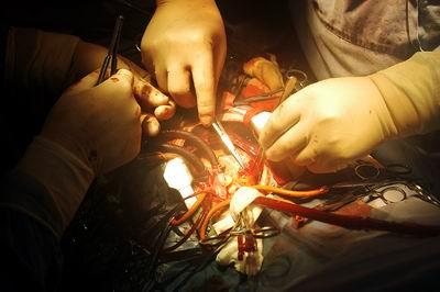 昨(13)日早上7时许,成都德瑞心血管病医院手术室外气氛凝重。医院院长、心外科专家李正国作为主刀医生已经提前来到手术室,默默地做着准备工作。 9岁的飞飞(化名)因严重的先天性心脏病即将动手术。包括心脏在内,飞飞的五脏六腑全部长反!就像正常人从镜子中看到自己一样,他们因此被称作镜面人,现实中出现的几率为几百万分之一。