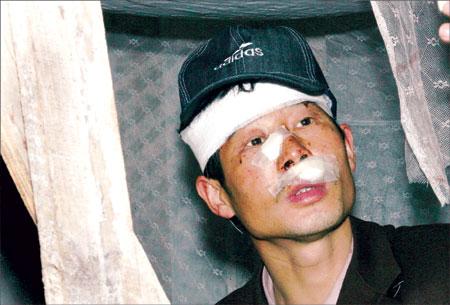 用胶布蒙眼封嘴并捆绑殴打在场的15名工人后