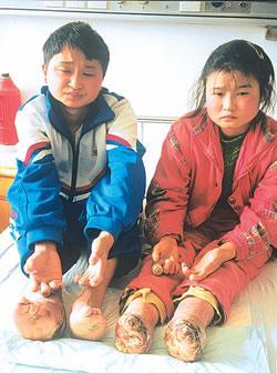 姐弟同患怪病 手指脚趾节节溃烂消失[图文]